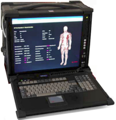 haemoseis-256-3d-vasculography-system-500x500.png