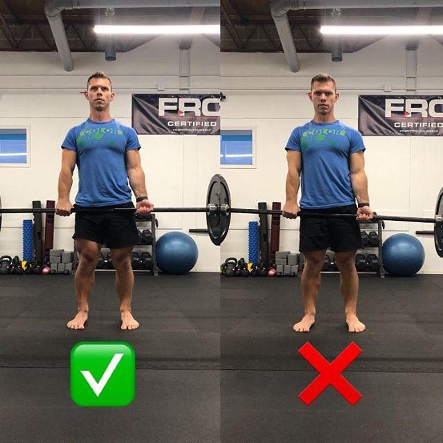PERFORMANCE POINT: Deadlift Grips and the Elbow Carrying Angle⁣ ⁣ A common strategy used during deadlifts is a mixed grip, or over/under grip. This is a useful tool when grip strength becomes the limiting factor with a double overhand (pronated) hand position. However...⁣ ⁣ I often see a mistake that causes the bar to sit unbalanced in the hands. This mistake is lining the fingers up at the same place on the barbell for both grip setups. ⁣ ⁣ For e.g., a client may line their index fingers up with the inner knurling on the bar for their overhand grip and then keep their fingers on the same lines when switching to underhand. This can cause the bar to rest unevenly due to the elbow CARRYING ANGLE. ⁣ ⁣ Carrying angle simply refers to the degree of outward jog from midline the forearm naturally assumes when supinated. Like the Q angle in the knee, this carrying angle will be different from person to person depending on their structure, which means grip width will vary between individuals. ⁣ ⁣ To account for this, I prefer starting with the index finger of the over hand and the ring finger of the under hand on the same lines. If the bar looks evenly distributed, feels balanced, and the shoulders/pelvis/spine are symmetrical, it's likely a good position. If not, make small adjustments until the position clicks. ⁣ ⁣ AGD. Train well. ⁣ ⁣ Image Reference:⁣ Regan WD, Morrey BF: The physical examination of the elbow. In Morrey BF, editor: The elbow and its disorders, ed 2, Philadelphia, 1993, WB Saunders, p. 74.
