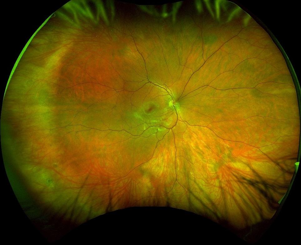 3D Retinal Photograph - Optomap Edmonton