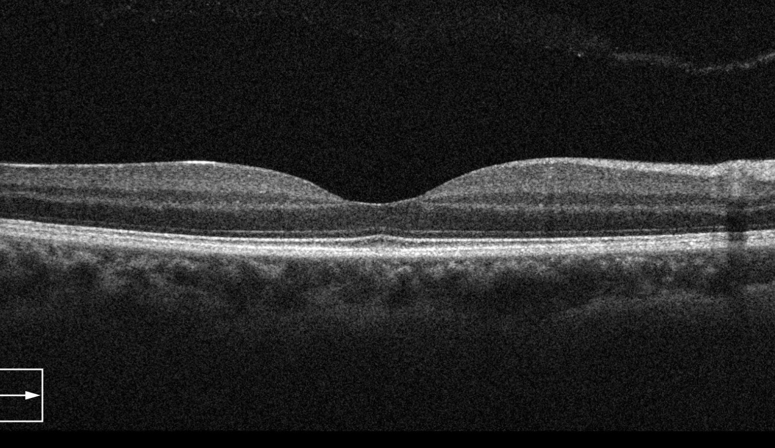 OCT Optical Coherence Tomography Edmonton
