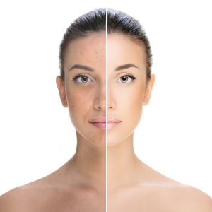 how to treat skin pigmentation problems