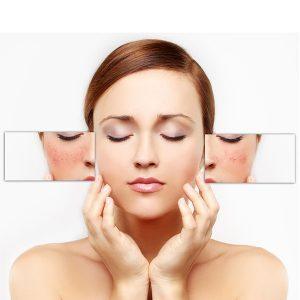 treatment for skin pigmentation problems