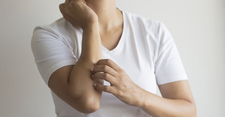 Expert Buying Guide: Best Clinical and OTC Remedies for People with Eczema