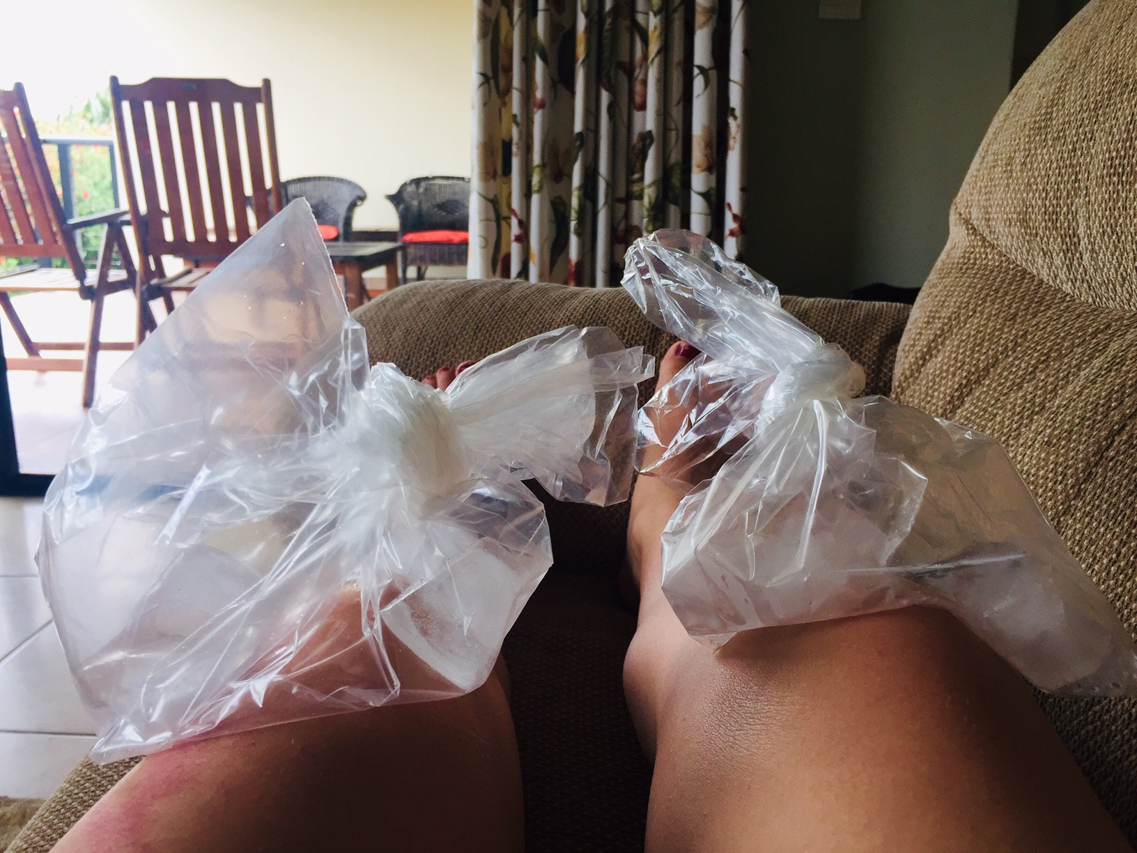 ice-knee-injury-running-mama-on-the-run-blog-sa.jpg