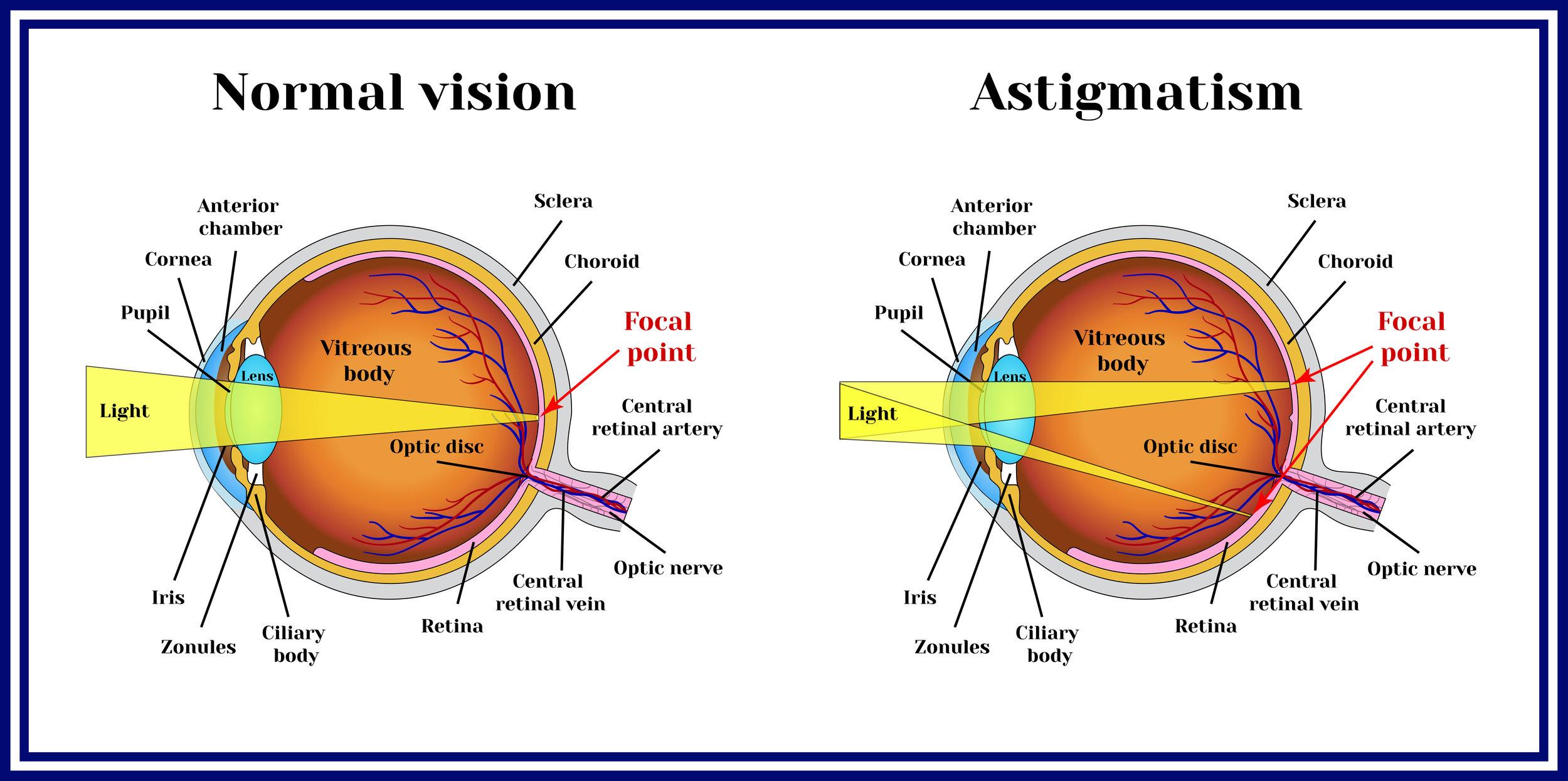 Magruder-Laser-Vision-Astigmatism.jpg