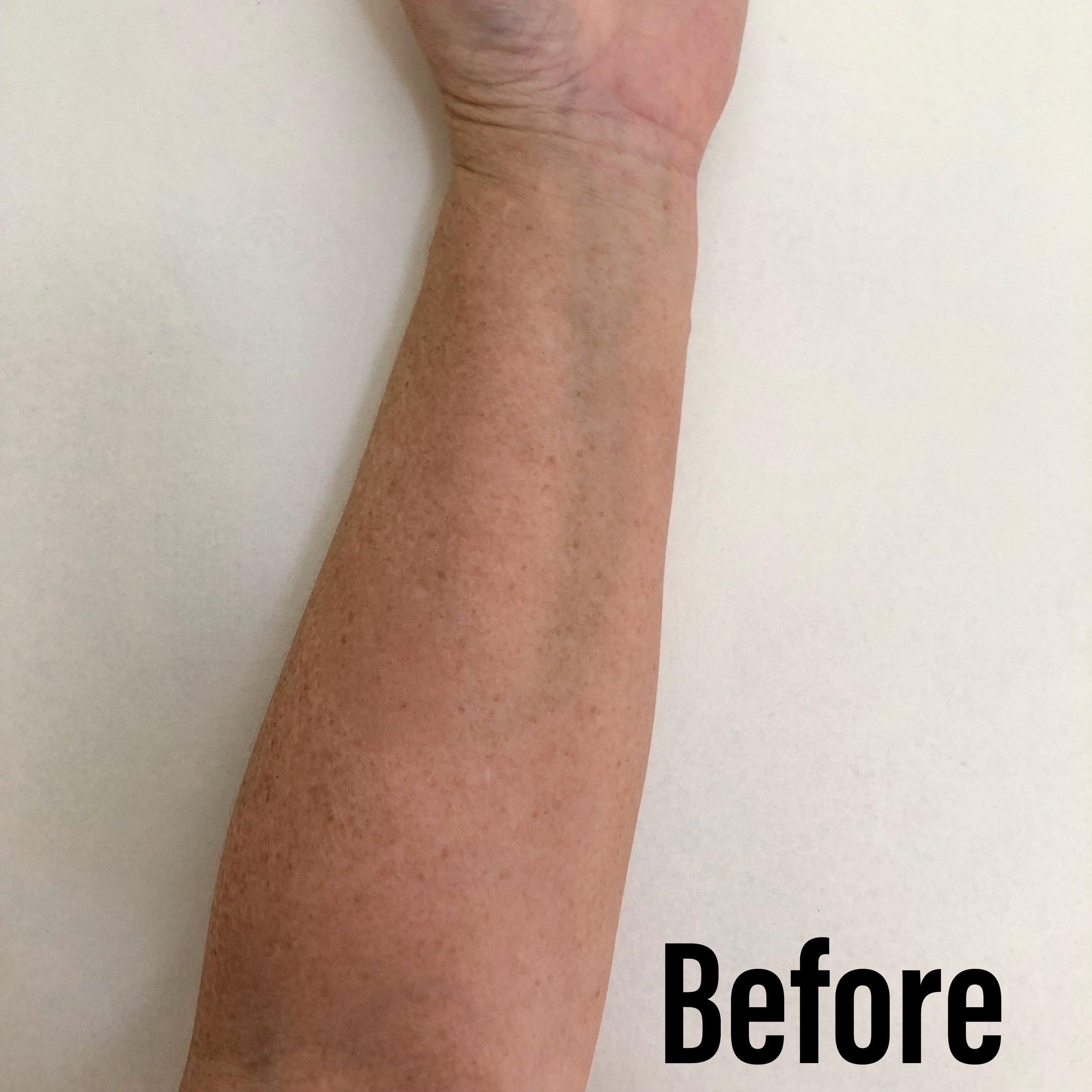 before tan.jpg