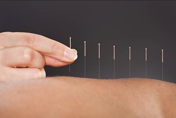 Acupuncture - Acupuncture involves the insertion of one-time disposable needles at specific points on the body to promote the self-healing process by restoring a healthy energy balance, and increasing and improving circulation.