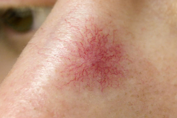 "Telangiectasia - Telangiectasia forms when dilated tiny blood vessels cause threadlike red lines or patterns on the skin. These patterns form gradually, often appearing in clusters and can develop anywhere on the body. They are commonly known as ""spider veins"" because of their fine and web-like appearance."