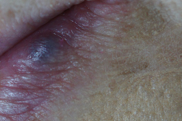 Venous Lakes - This is generally a soft, compressible dark blue to violet coloured lesion commonly found on sun exposed surfaces of the border of the lip, face and ears. These lesions usually occur among the elderly.