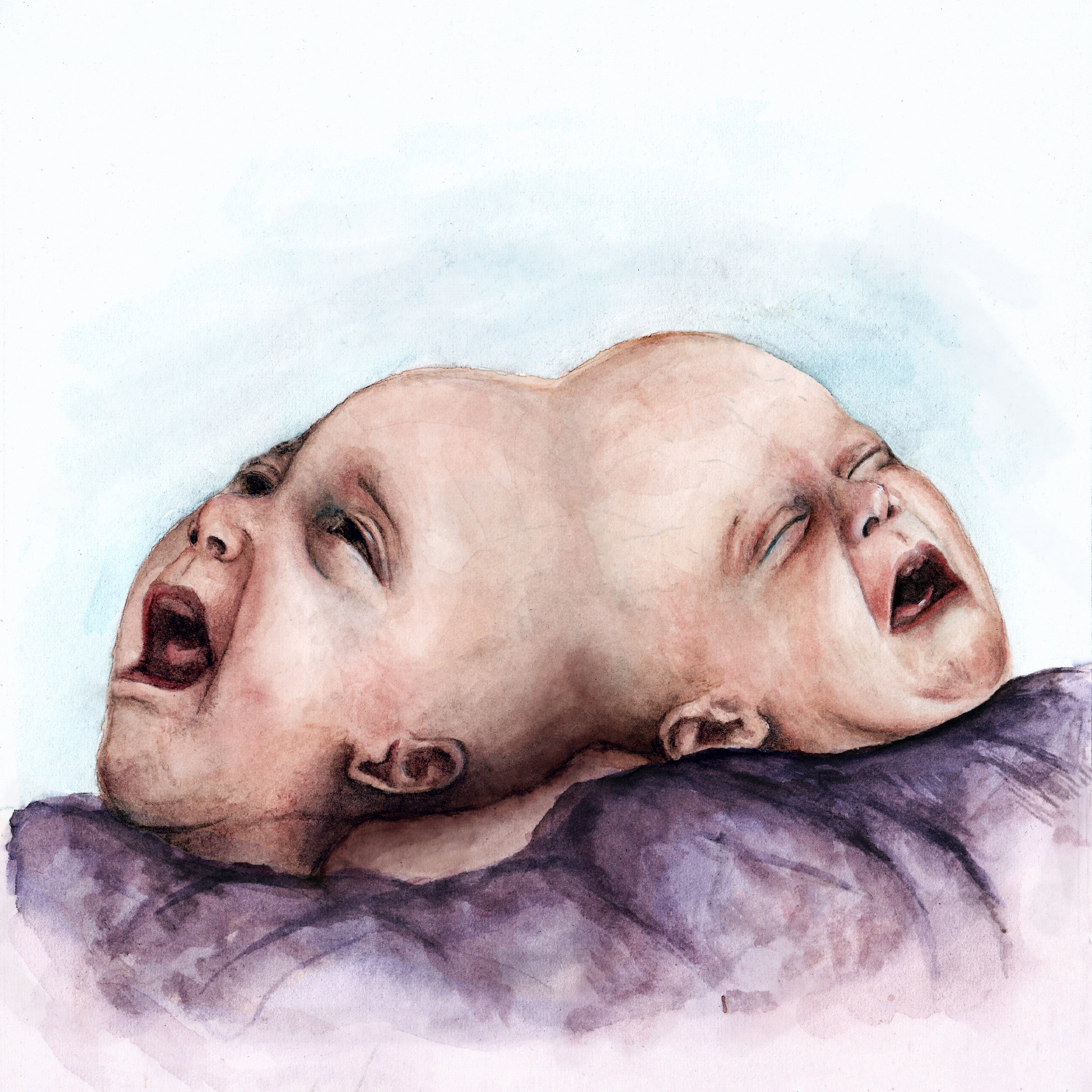 Conjoined Twins .jpg