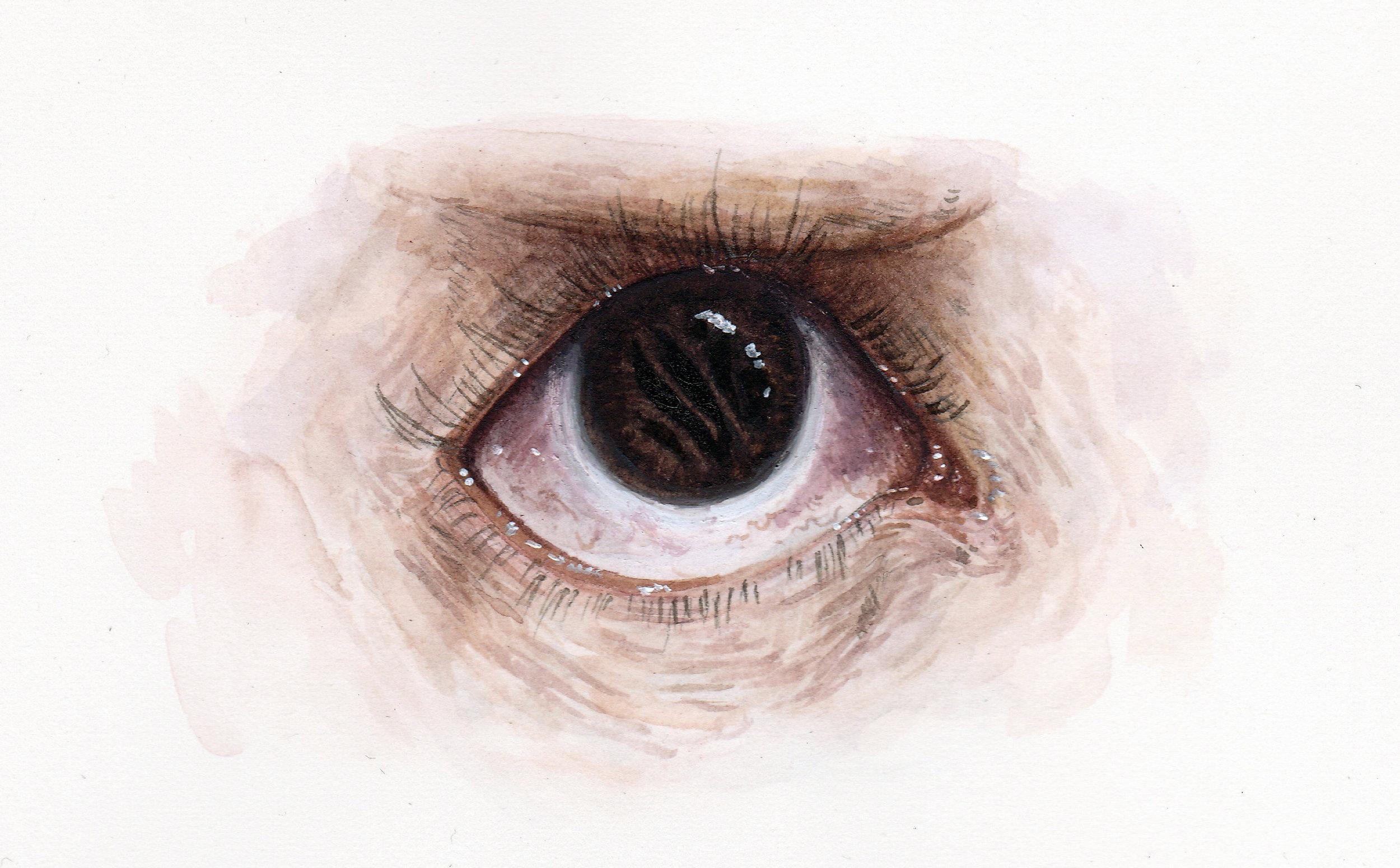 Torn Iris 2.jpg