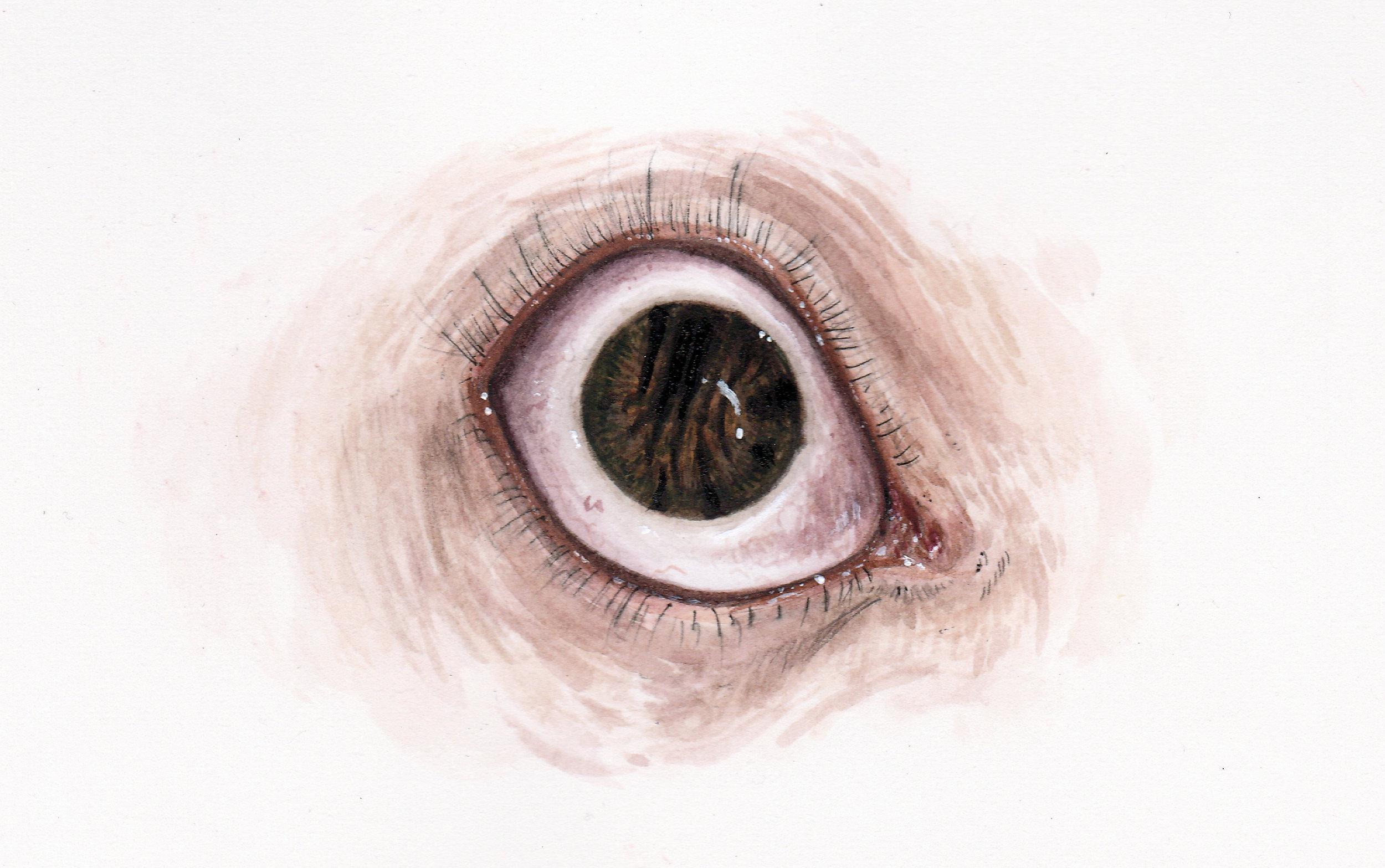 Torn Iris 1.jpg