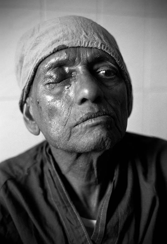 Man waiting for cataract operation, Kathmandu
