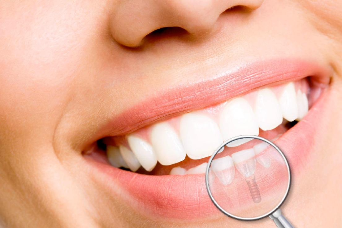 Dental-Bone-Structure.jpg