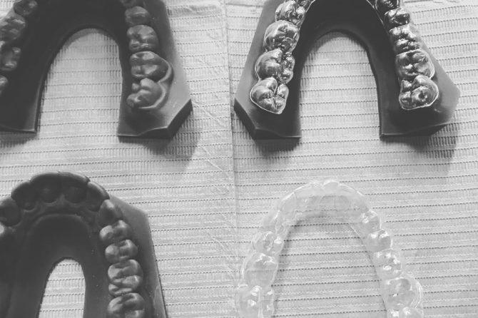 new-orthodontics-670x446.jpg