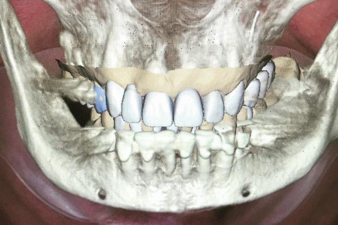 digital-smile-desing-overlapping-3D-ingaing-670x446.jpg