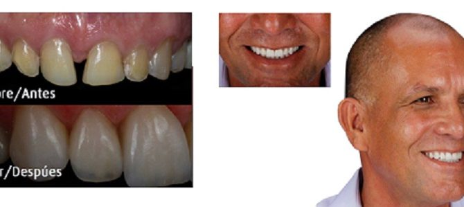before-and-after-Dr.-Delfin-Barquero-670x299.jpg