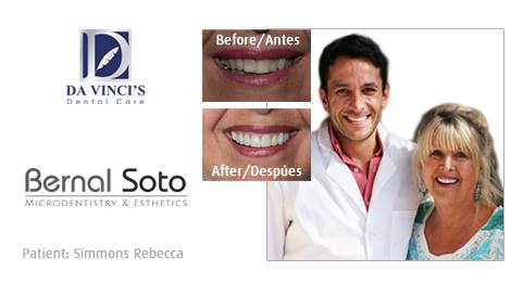 Dr soto before and after testimonial rebecca simmons.jpg