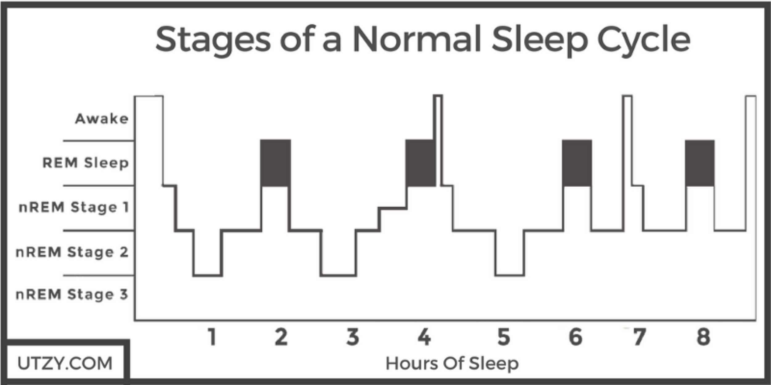 Stages of a normal sleep cycle.  Picture from utzy.com