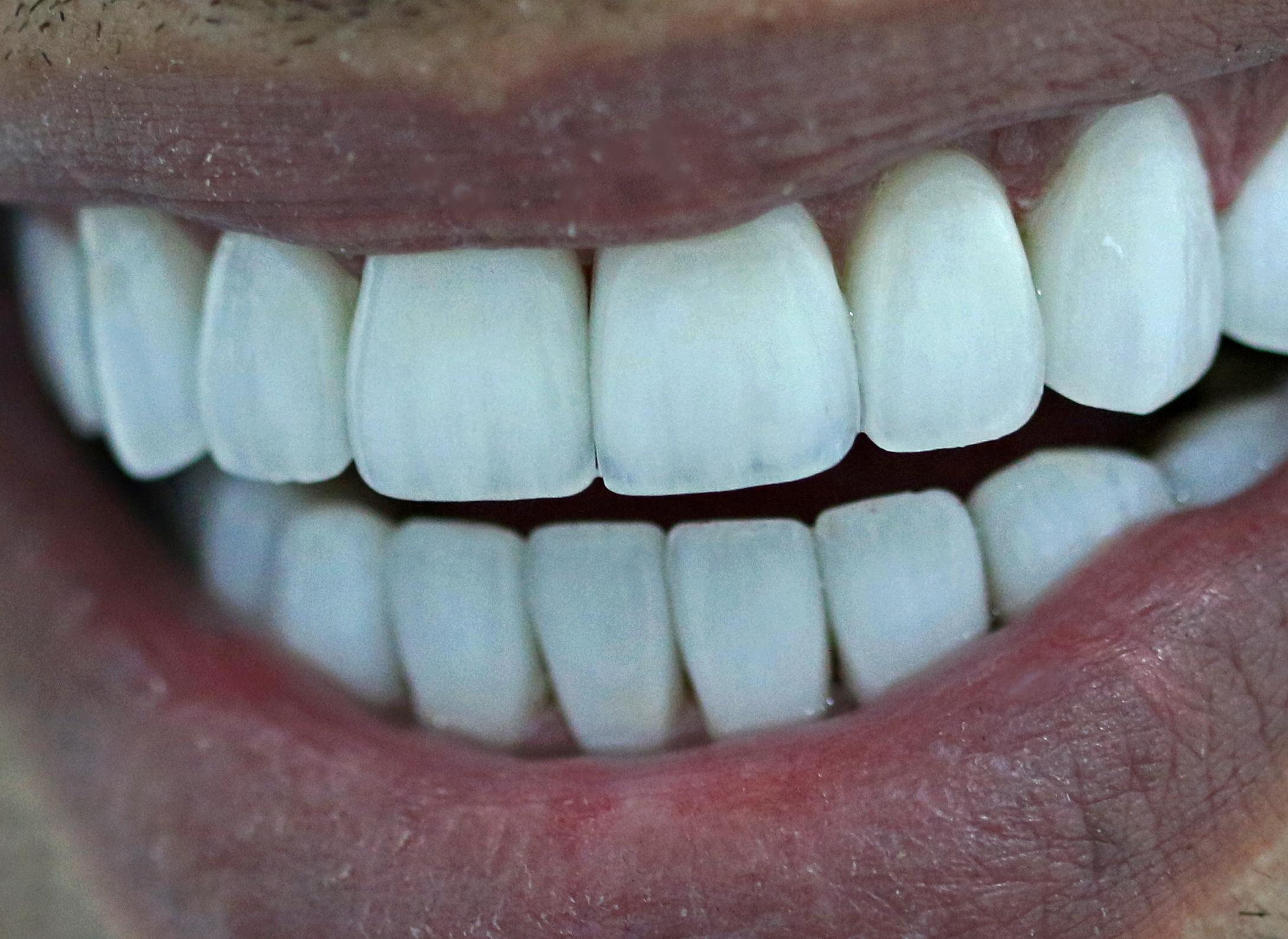 IMG_5960-Teeth-Edited.jpg