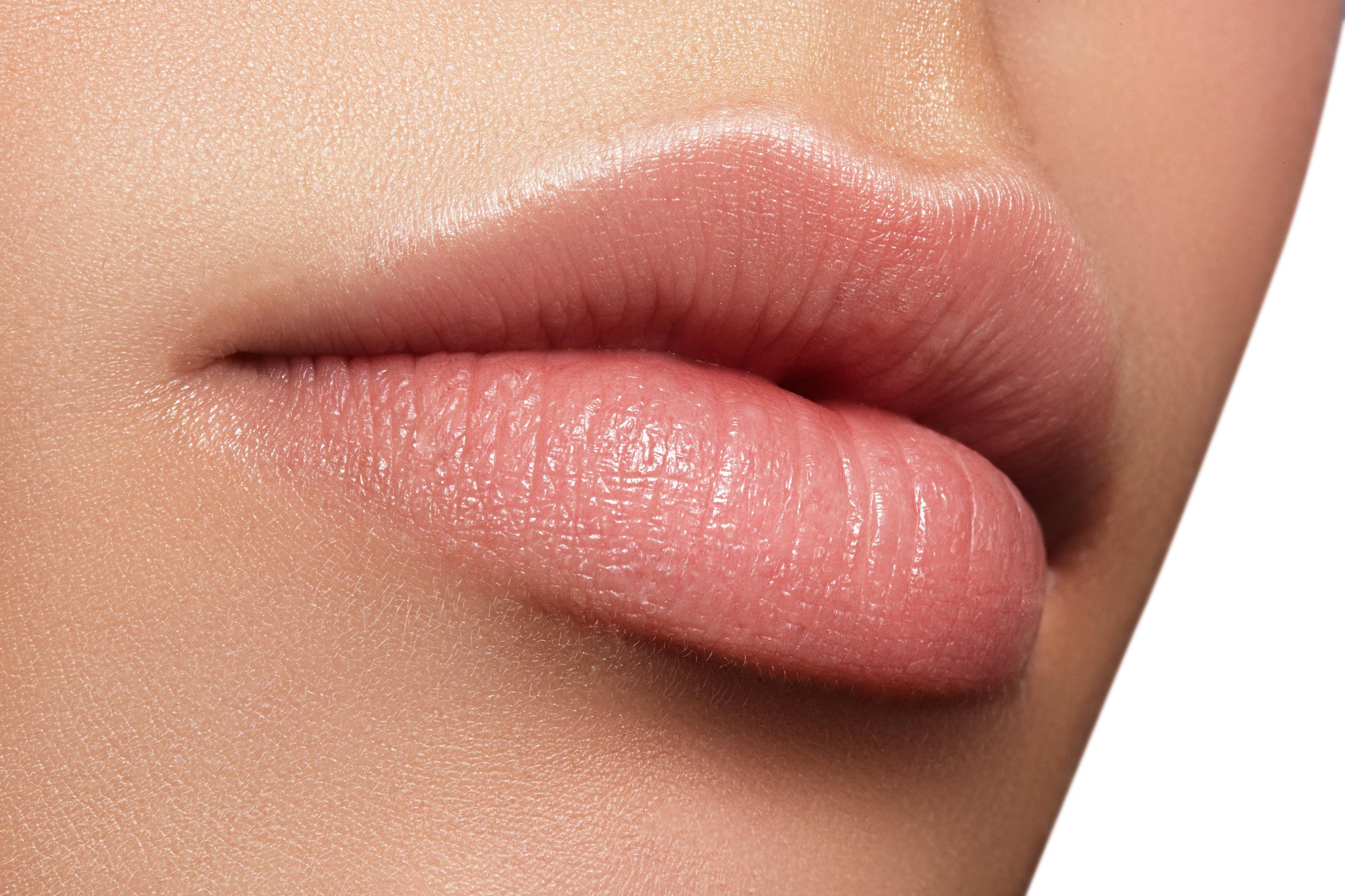 Lip Dermal Fillers Invercargill Botox.jpeg