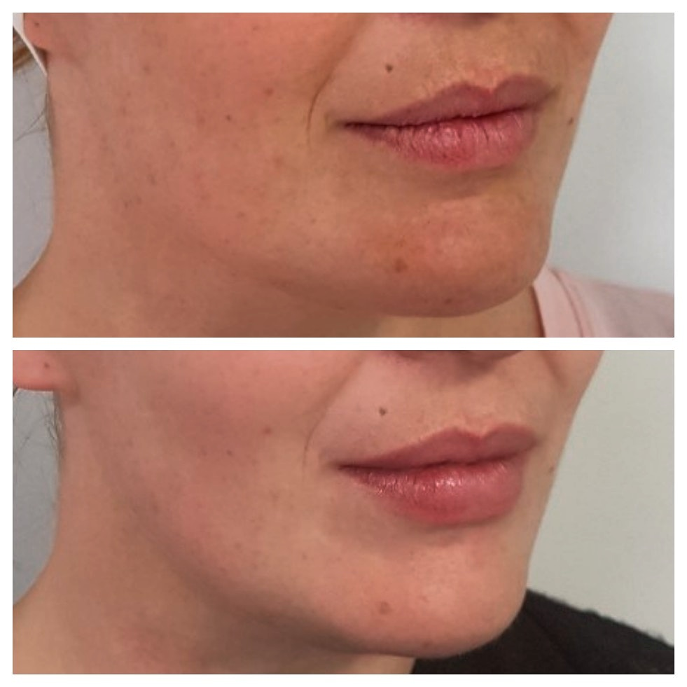 Dermal Fillers Lips and Chin Invercargill.jpg