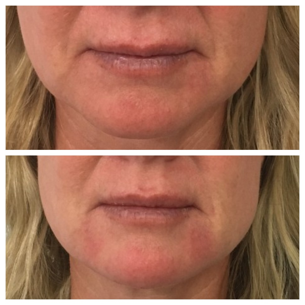 Dermal Fillers to chin Invercargill
