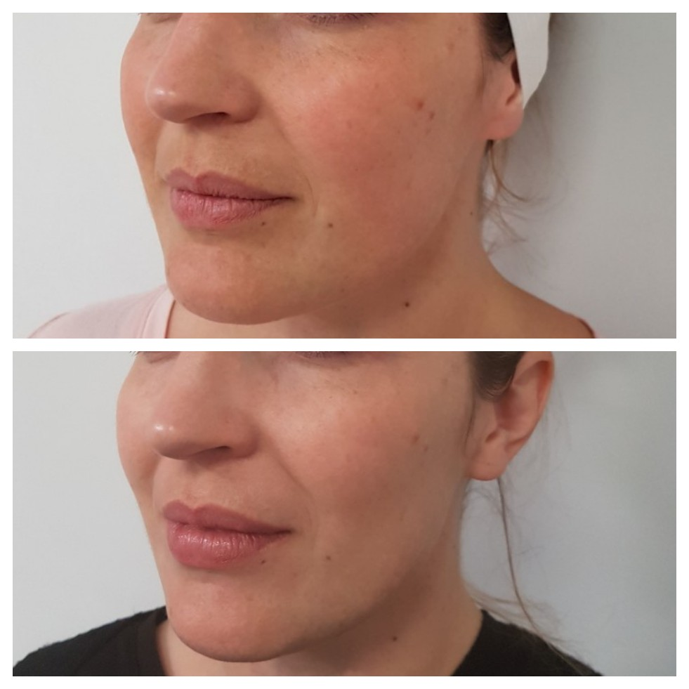 Lip Botox Injections Invercargill
