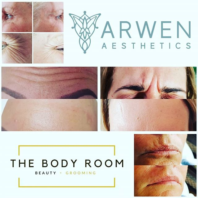 Limited places left on our next clinic with Lindsay from Arwen Asthetics 10th July, DM for your free no obligation consultation.  #knowyourinjector #advancednurseprescriber #frownlines #lips #satisfiedclient
