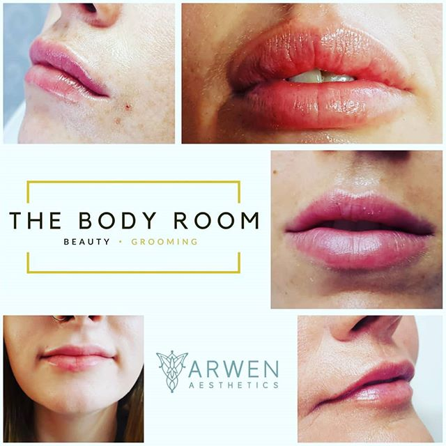Our next aesthetics clinic is on Friday 9th August, DM for prices and to book your free consultation. Lindsay is a highly skilled NHS professional with over 20 years nursing experience.  #lipaugmentation #lineandwrinkletreatment #nursepractitioner #advancednurseprescriber #dermalfillers #juverdermultra #safetyfirst