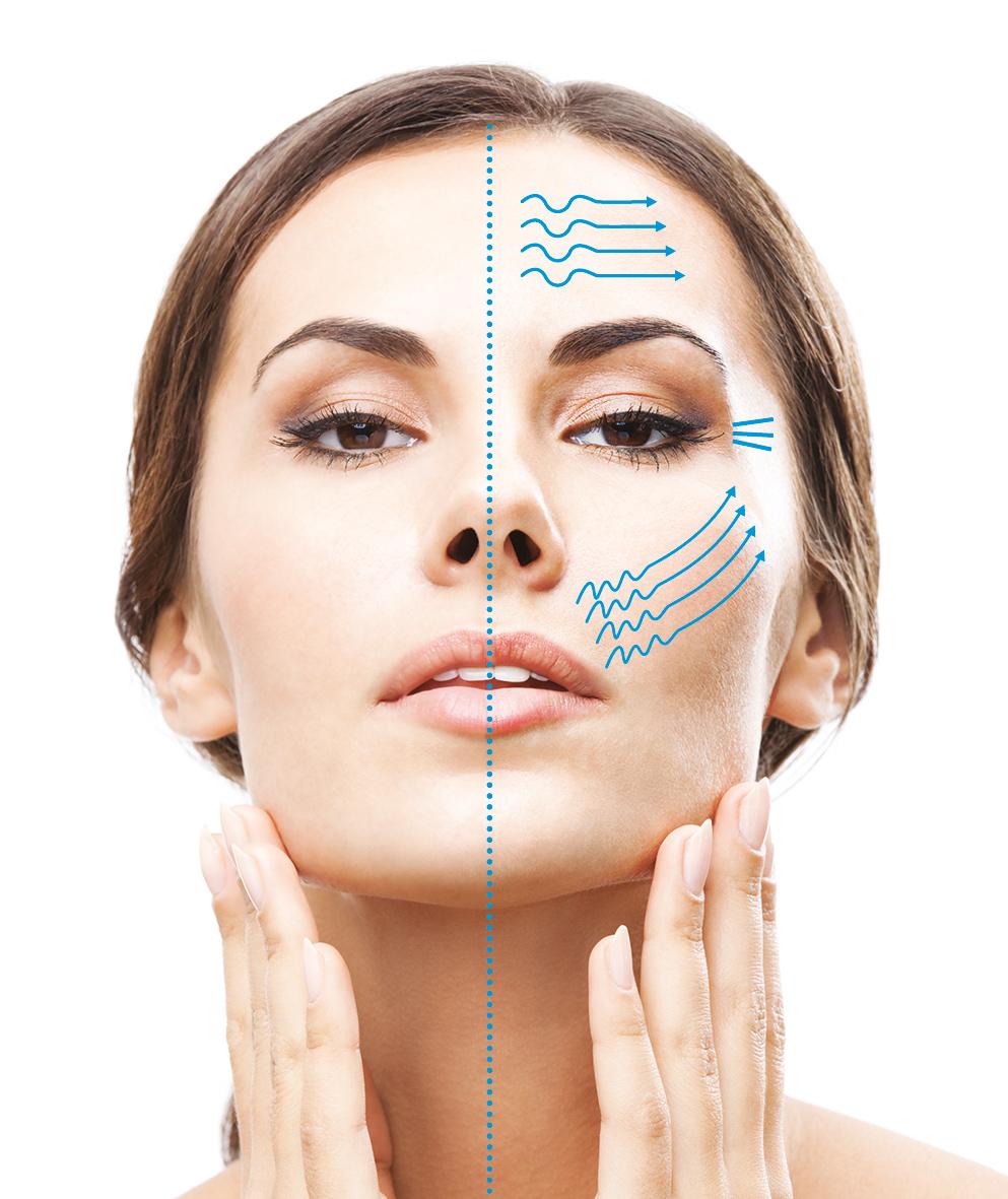 Skinmed-Woman-RF.jpg