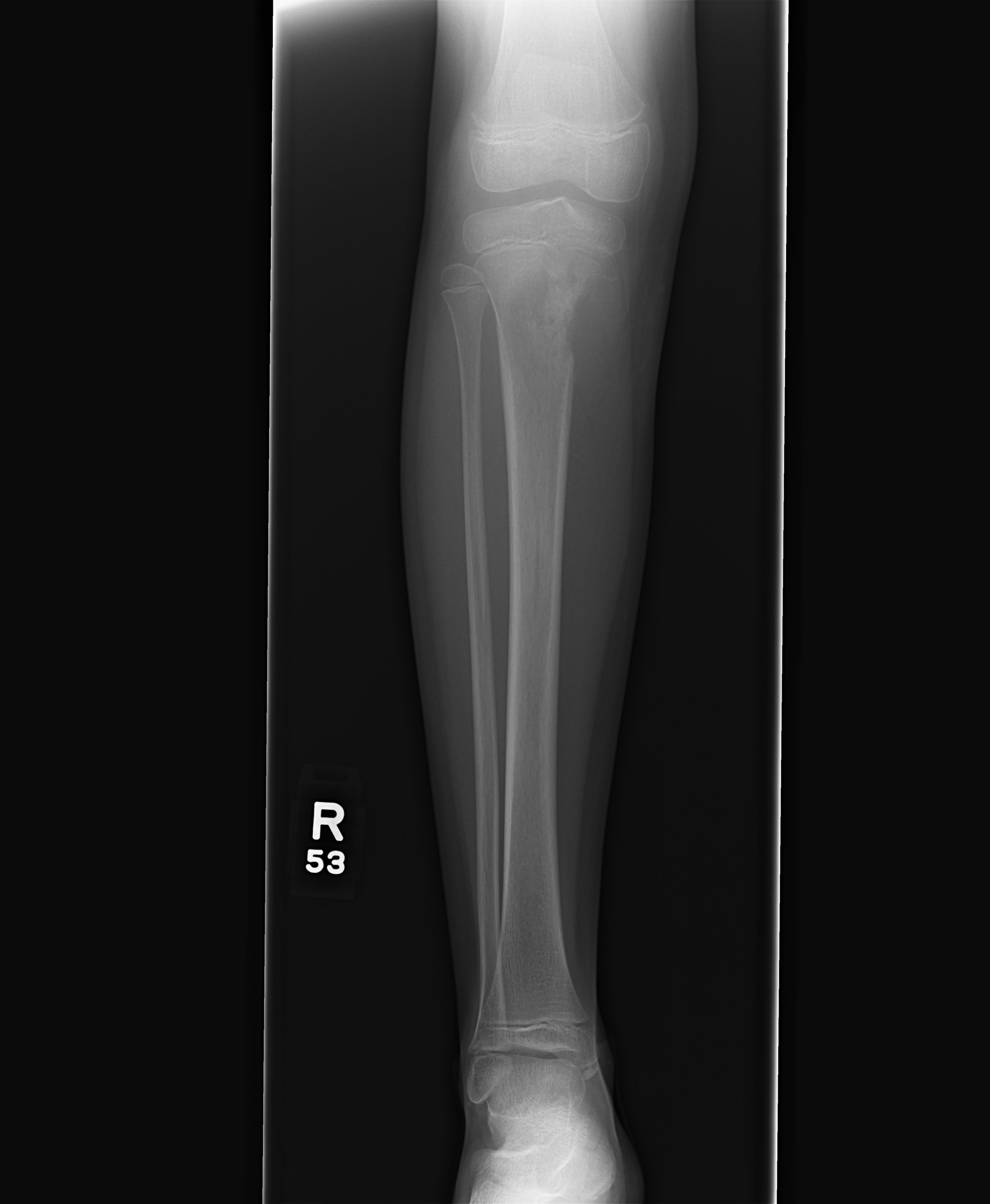 Osteosarcoma on right proximal tibia.