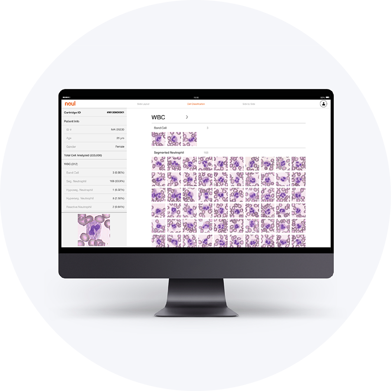 Cell Differential AI Analysis - After the test cartridge automatically prepares the sample, the installed 500x CMOS-based microscope captures blood cell morphology images for the embedded AI analytics to perform differential count and related analysis in minutes.