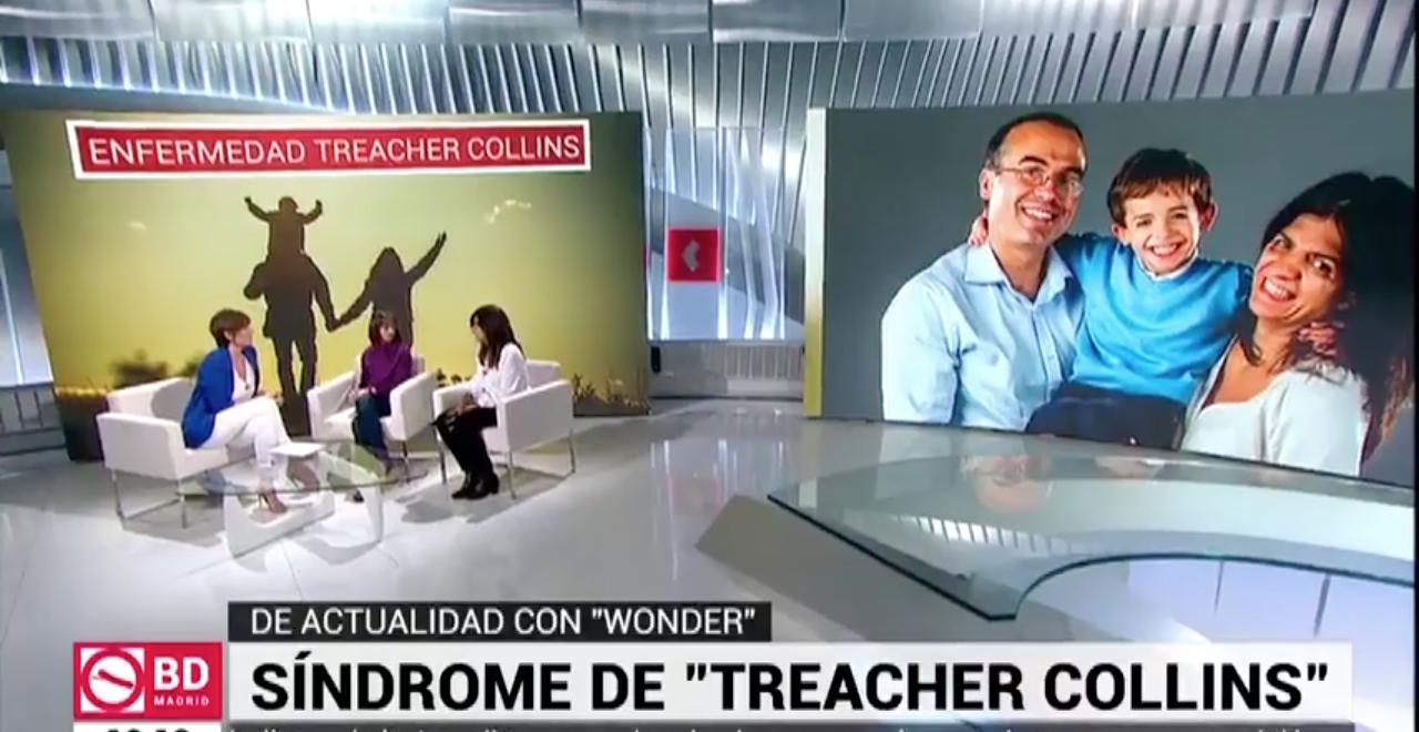 Marta Landin en 'Buenos días Madrid', hablando de la película Wonder y el síndrome de Treacher Collins.