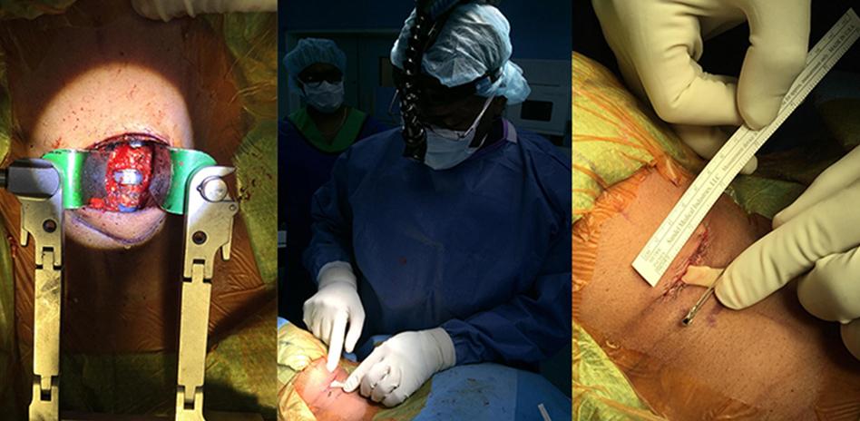 less-exposure-surgery.jpg