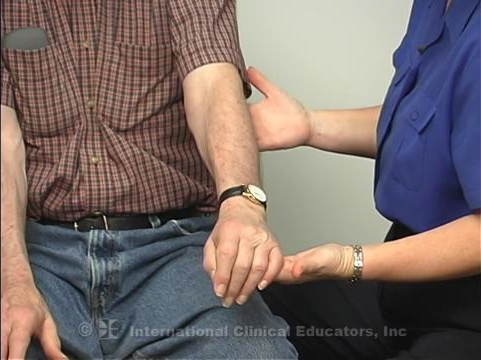Upper Extremity Observations of Motor Control