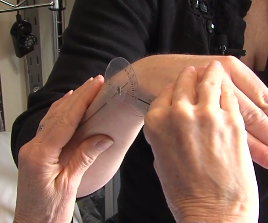 Radial Fracture, Part 3: Measuring Range of Motion, ICE Video Library