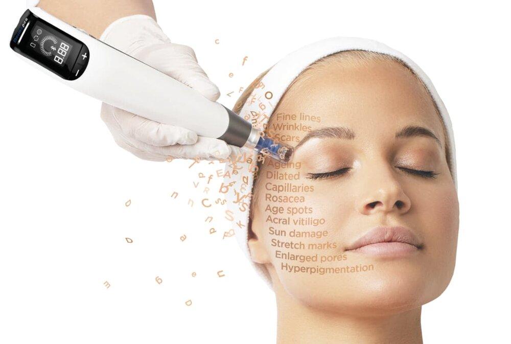 DERMAPEN4 - Dermapen er en af de mest innovative og effektive behandlinger, der hjælper til at forbedre hudens struktur.