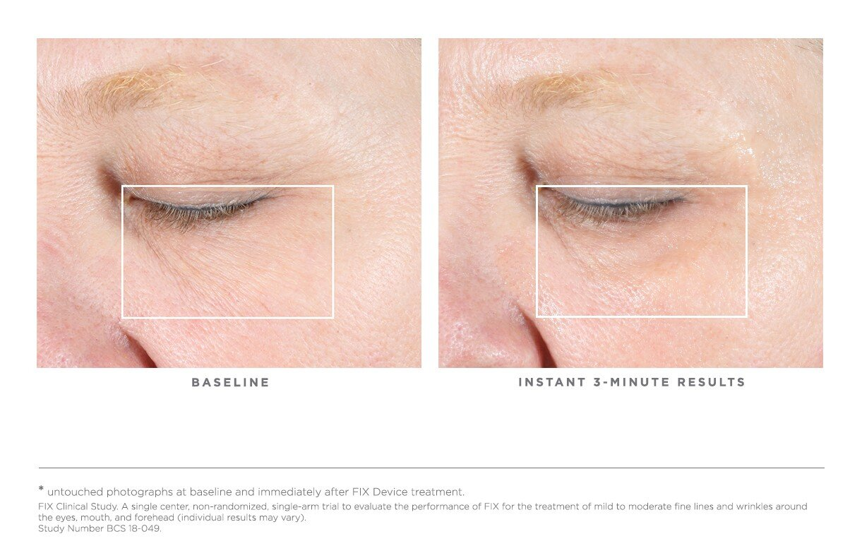 REAL RESULTS Clinically Shown + Instant Results*    100% of women said their skin felt instantly hydrated  97% of women said their skin felt instantly tighter around the eyes  95% of women said their eyes appeared less puffy  92% of women said their treatment area felt instantly firmer