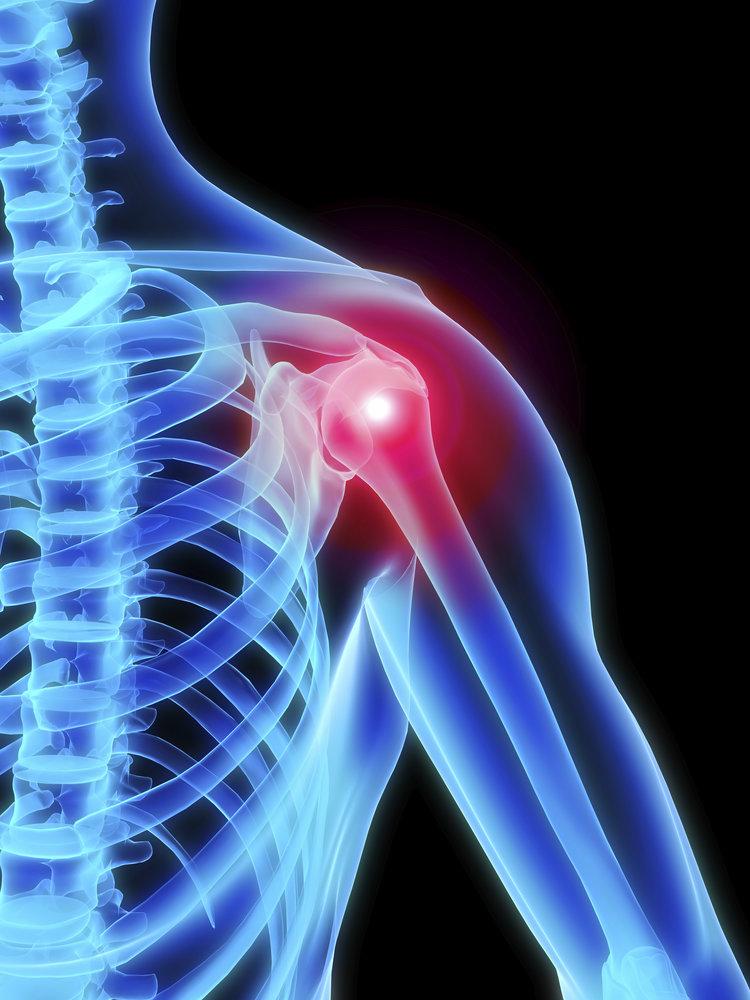iStock- shoulder .jpg