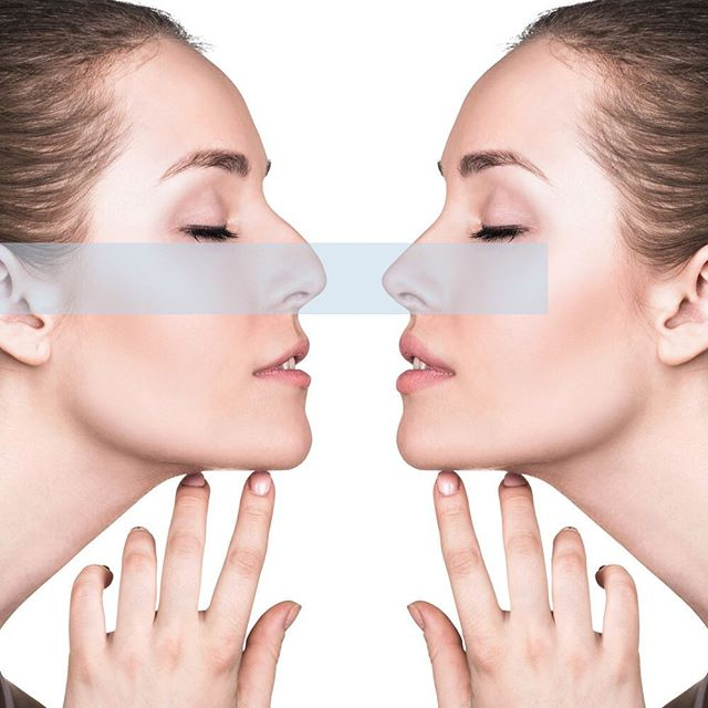 Did you know dermal fillers can be used for the nose to refine, shape and correct the shape of the nose? Using dermal fillers as a way to sculpt & define the face rather than simply fill in lines and folds, is what's so fantastic  about this field of aesthetic medicine! #dermalfillers #perfectnose #bodyconfidence #loveyourself  #immersionclinicalspa