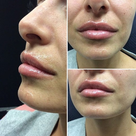 Another gorgeous snap of a very happy client of @cosmeticnurse_olivia at our Moonee Ponds & Williamstown clinics. This is photographed 3 months post treatment! Perfect pout? 100% YES! #lipinjections #lipfillers#cosmeticnurse #cosmeticnurseinjector  #immersionclinicalspa