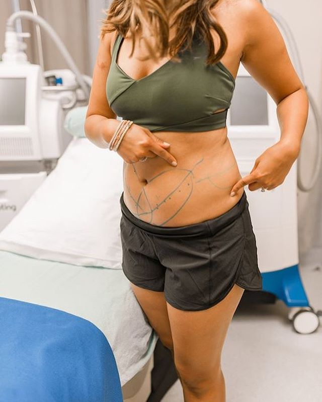 Monday tomorrow, time for a fresh start! If you're feeling even 1% uneasy with a particular area of your body, CoolSculpting is a fabulous non-invasive treatment that will target areas of concerns & turn them into the areas you'll want to flaunt! #bodyconfidence #loveyourbody #CoolSculpting #immersionclinicalspa