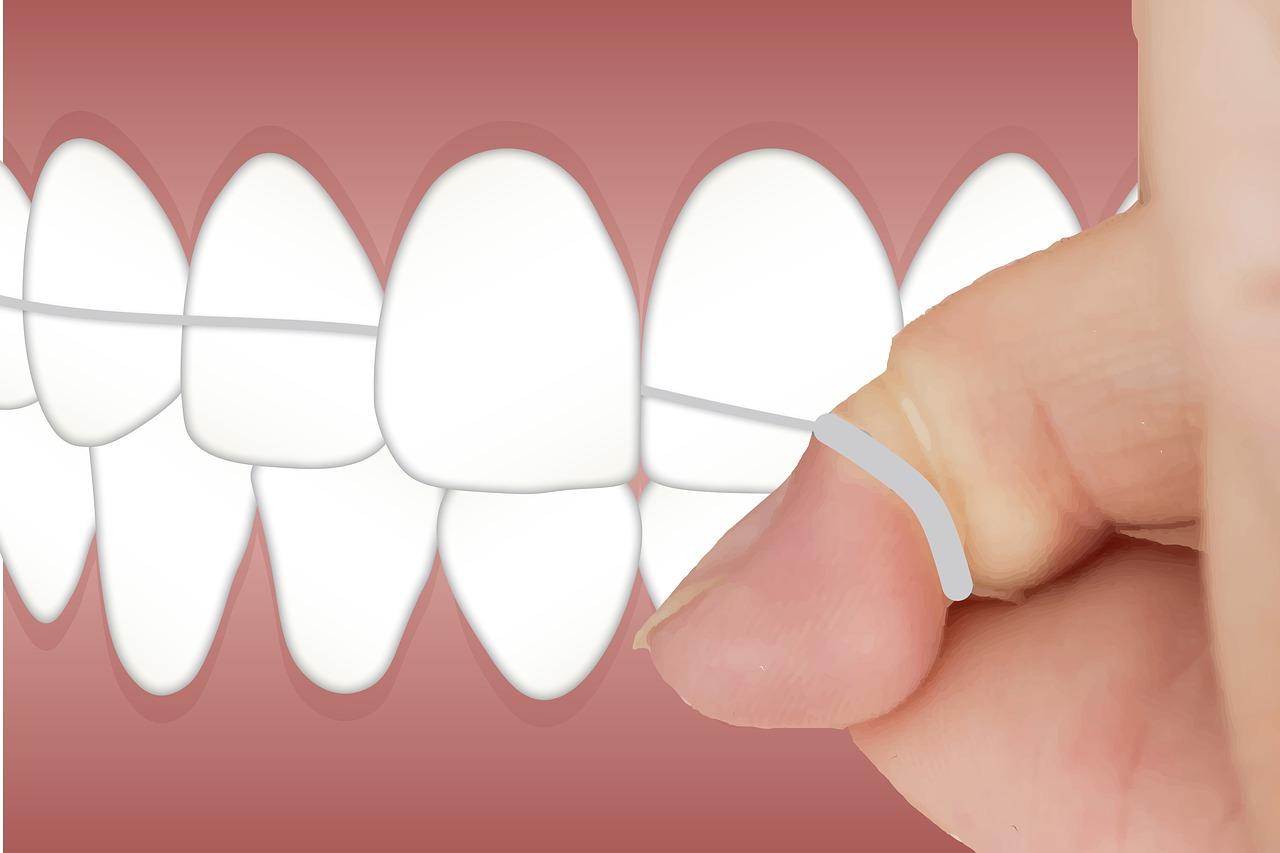 dental-3597613_1280.jpg