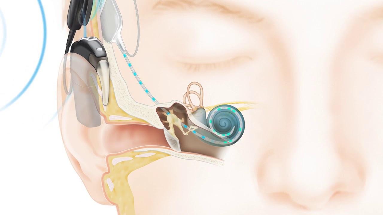 Implante-Coclear.jpg