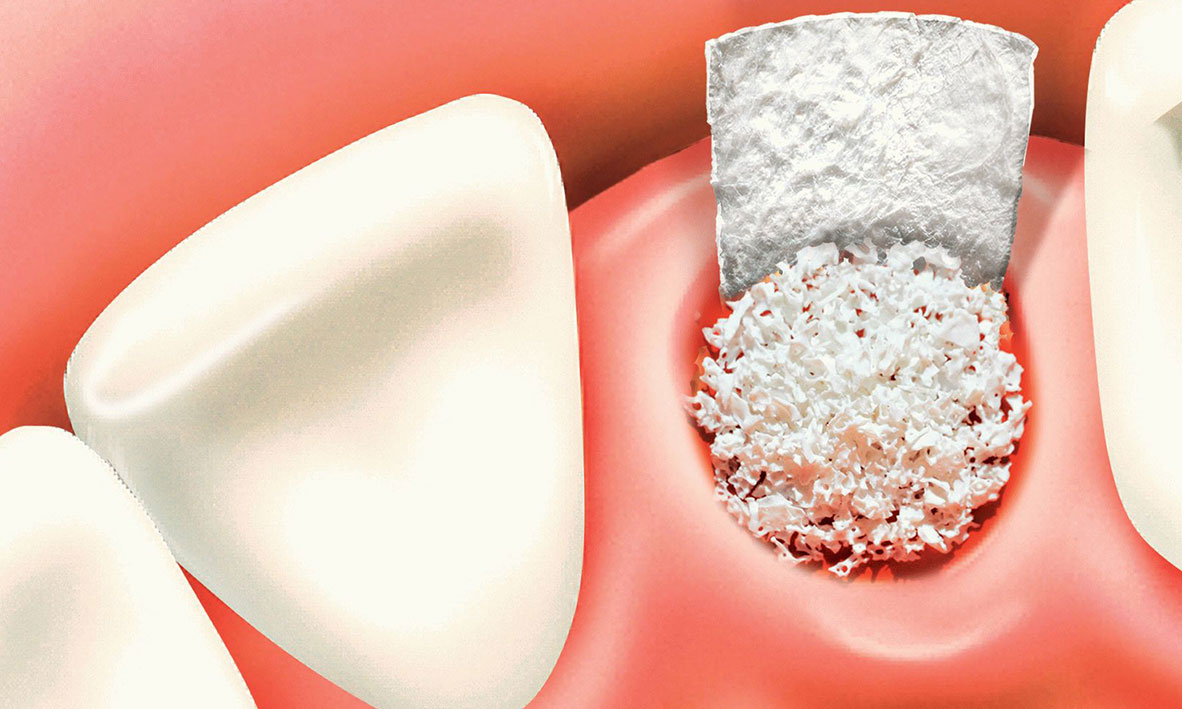 — - Bone Grafting