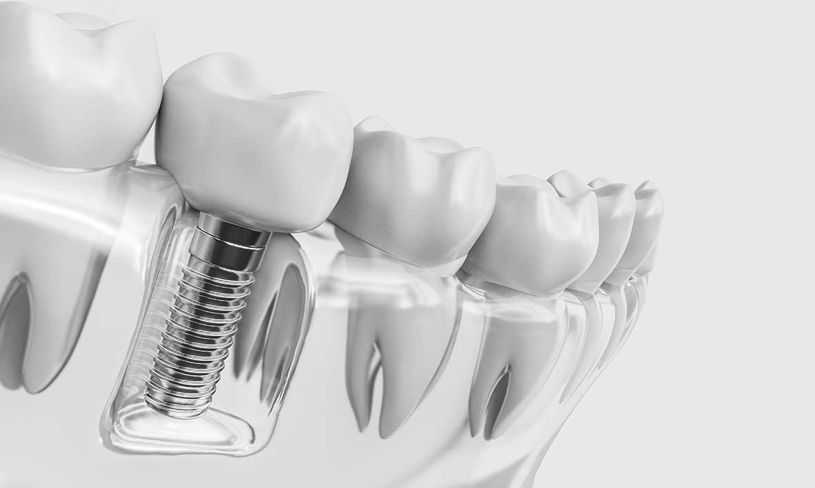 — - Dental Implants