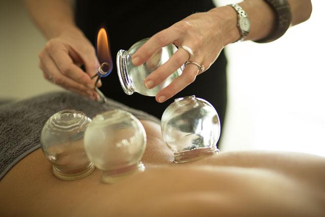 cupping+adagio+holistic+therapies+ventosas.jpg