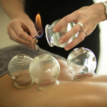 cupping+ventosas+adagio+holistic+therapies.jpg