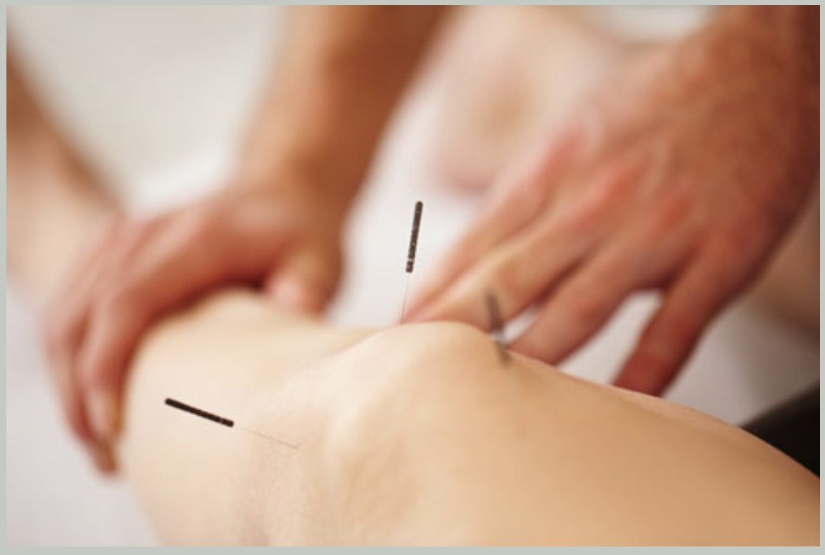Holistic Physical Therapy - Your session Includes a complete evaluation of your condition and a comprehensive treatment plan.You will receive individualized attention from the Holistic PT and hands on modalities including Dry Needling, Manual Therapy, Myofascial Release, and Therapeutic Exercise / Yoga.